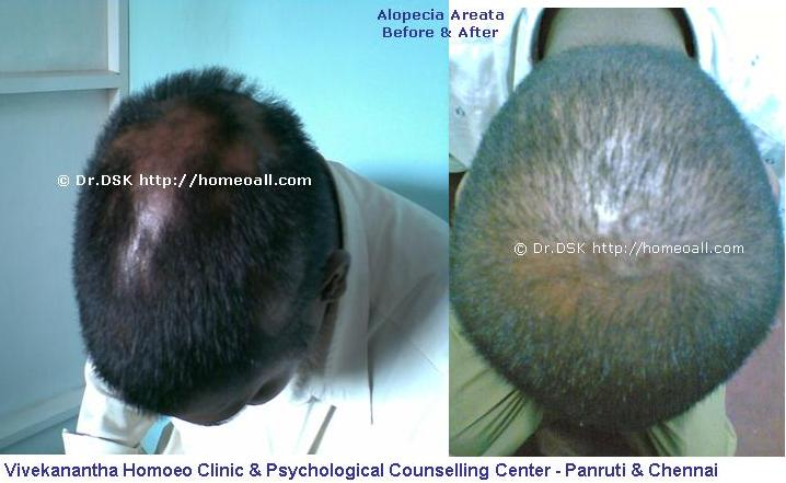 Alopecia Areata - Before and After Treatment