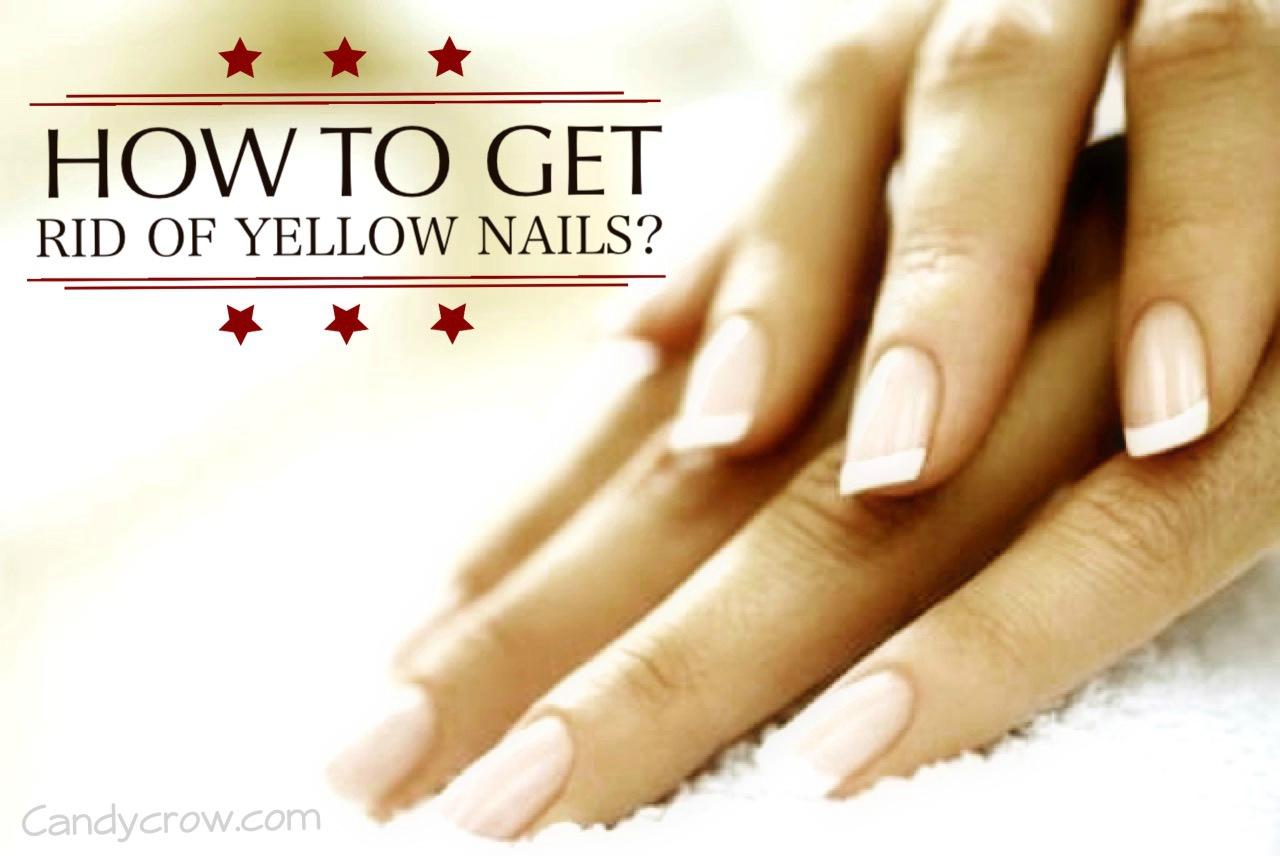 How To Get Rid Of Yellow Nails Quickly Candy Crow Top