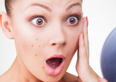 Home Remedies to Remove Pimples