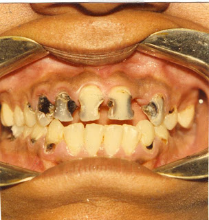 dental carries-ifumbi