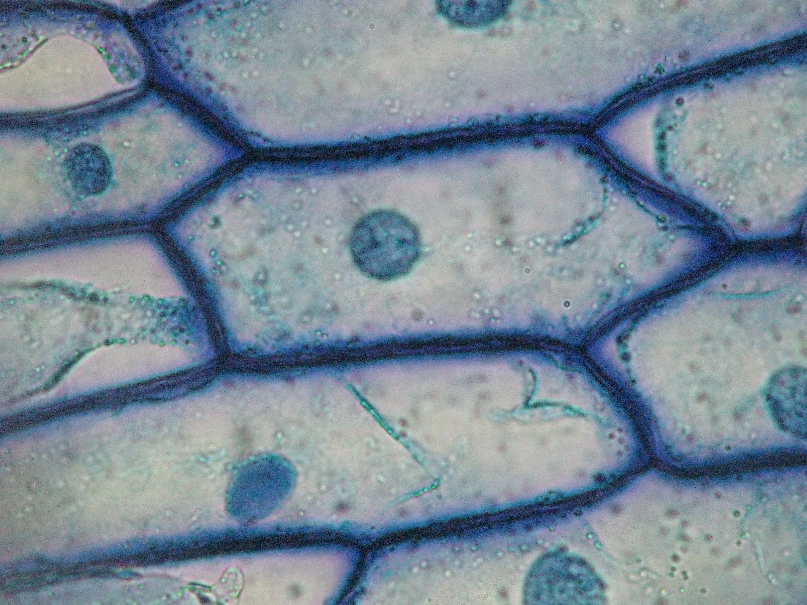 Beautiful World  Onion     Cells