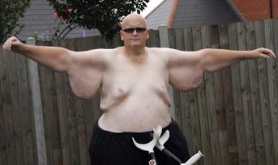 英國 半噸人 減重250公斤