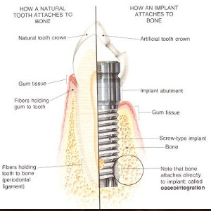 Implant attachment to bone