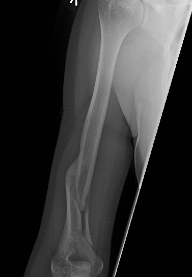 Humerus Spiral Fracture Recovery: Week 20: X-Rays...and it ...