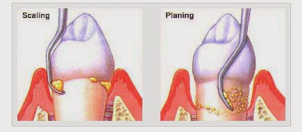 Gum Disease: Getting to the Root of the Problem | Accretive Health