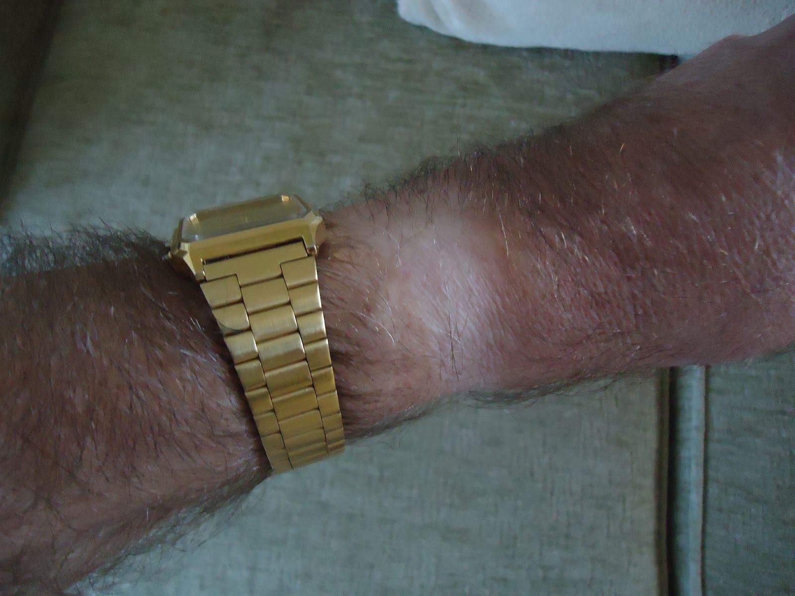 Watch marks on wrist - I Rather Hope That The Steroids I Have Been Taking The Last Few Days Might Help Build Me Up Again I Saw The Consultant On Thursday And He Prescribed Them