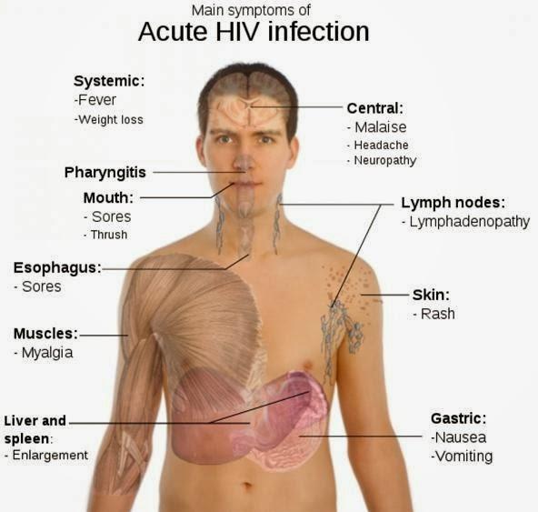 Laporan Pendahuluan HIV AIDS