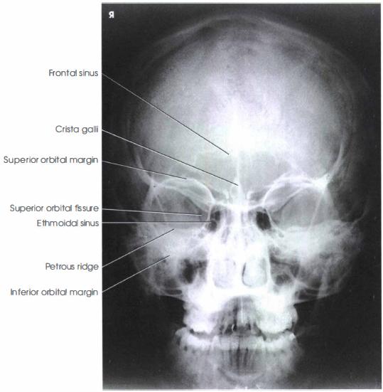 facial bone x ray