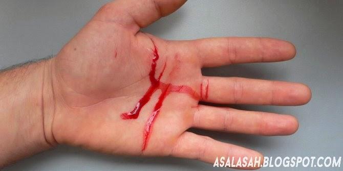 http://asalasah.blogspot.com/2014/04/tindakan-pertolongan-pertama-pada-luka.html