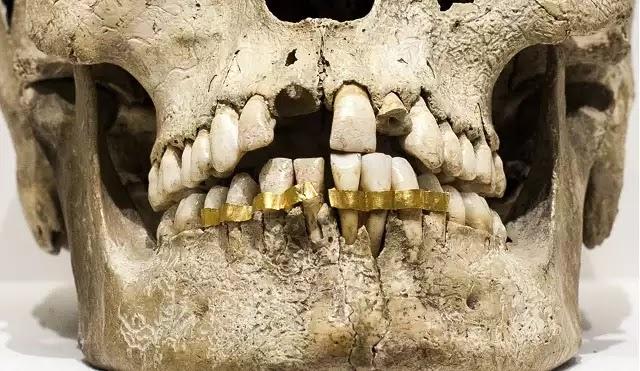 Ανατριχίλα προκαλούν αυτά που συμβαίνουν στο νεκροταφείο Αγίου Δημητρίου. Μαύρο χρήμα και κλοπές χρυσών δοντιών από νεκρούς σε κοιμητήριο