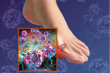 foods good for reducing uric acid causes of increased uric acid in blood colchicine treatment for gout mechanism