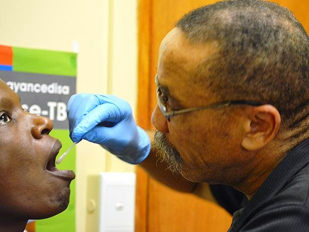 Diagnosing Tuberculosis Through Oral Swabs