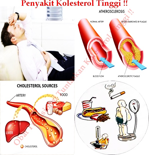 Obat Tradisional Tuntaskan Kolesterol Tinggi