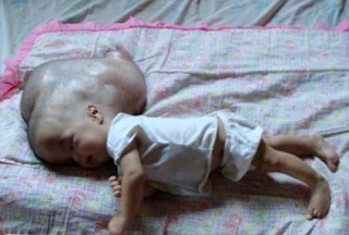 ولادة طفل في تايلند رأسه كبير جدا ..سبحان الله