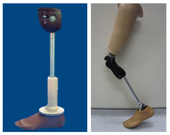 prothesis leg Find great deals on ebay for prosthetic leg in braces and supports shop with confidence.