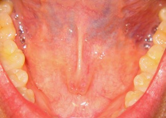 Crystal lake dental 39 s hot topics oral cancer detection for Floor of mouth cancer