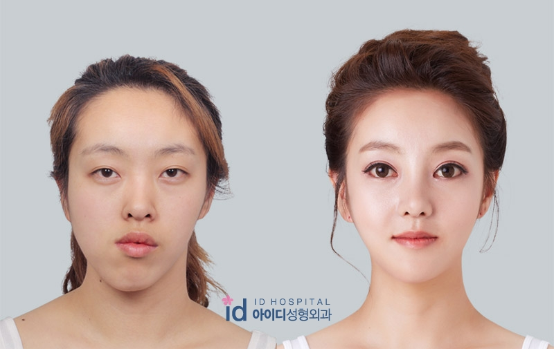 Grand Plastic Surgery – Tip Rhinoplasty – Short Nose Correction