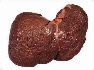 Laporan Pendahuluan Sirosis Hepatis (Sirosis Hati)