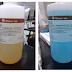DETERMINACIÓN DE PROTEÍNAS TOTALES, ALBÚMINA Y GLOBULINA - Informe de laboratorio #5 Bioquímica II