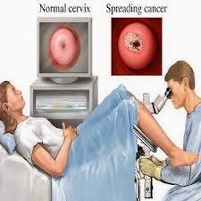 pengobatan herbal tumor rahim