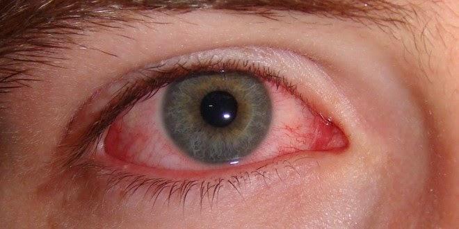 Dịch đau mắt đỏ lại bùng phát ở Hà Nội