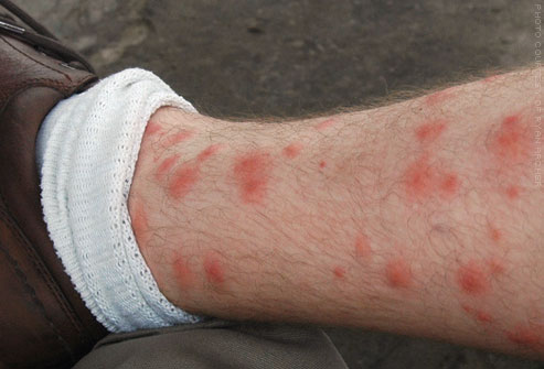 Itchy red welts can result from chigger bites