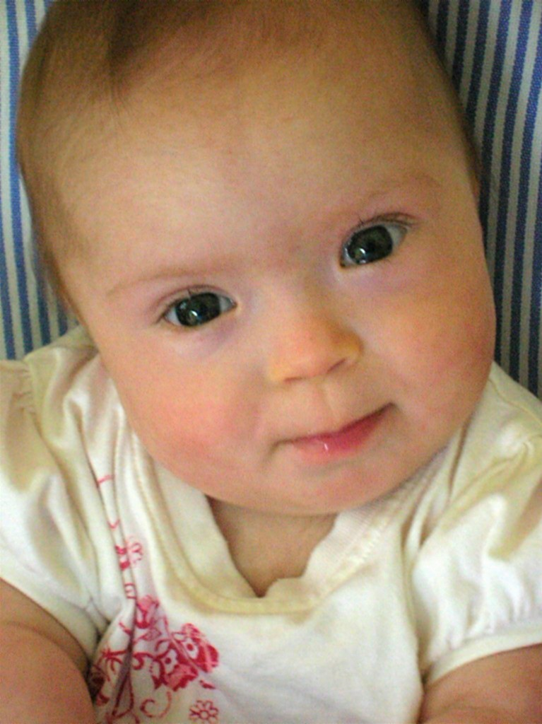 down s syndrome Facts and faq about down syndrome in the us, down syndrome is the least funded major genetic condition by our national institutes of health despite being the most frequent chromosomal.