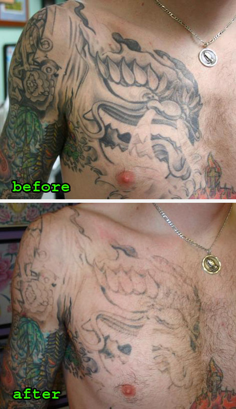 tattoo removal before and after. Black Bedroom Furniture Sets. Home Design Ideas