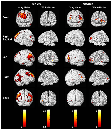 Sex differences in the brain photos 56