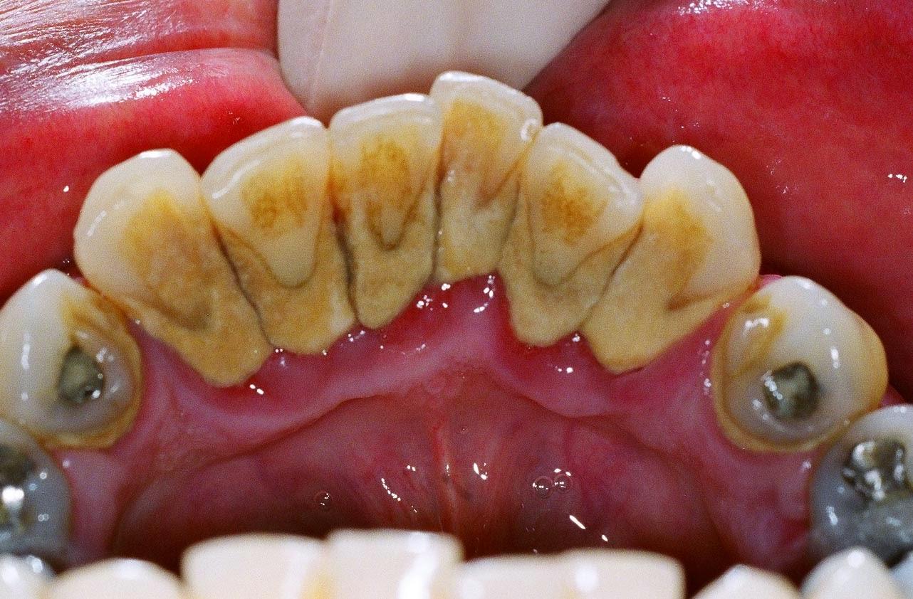 Cara Memutihkan Gigi Kuning Untuk Perokok Aktif Cara Tono Tono