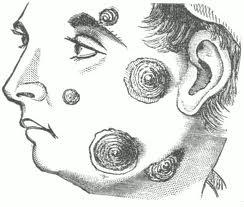 Informatii despre impetigo-ul contagios (Tilbury-Fox)