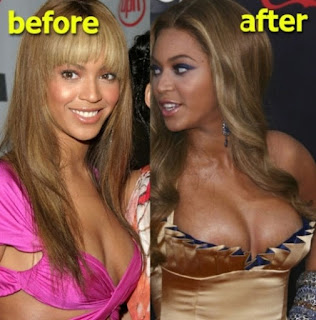 Beyonce Breast Implants Before and After Photos