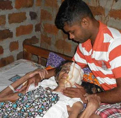 Serius, Wanita Malang Muka Di Mamah Kuman | Seorang wanita yang kini berusia 59 tahun mengalami satu penyakit ganjil dan jarang ditemui didunia.