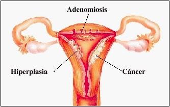 obat tradisional penebalan dinding rahim