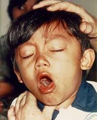 Difteri bukan masalah sepele