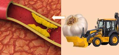 Gb. Manfaat Bawang Putih Untuk Kolesterol
