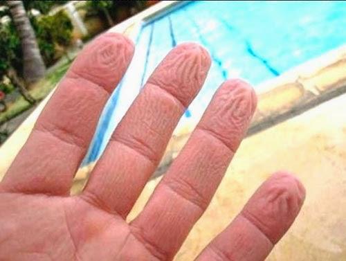 Por que nossa pele fica enrugada quando ficamos na água ?
