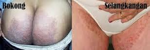 Cara Menghilangkan Gatal Pada Bokong Atau Pantat