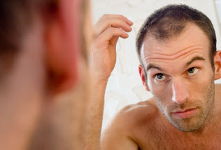 Regrowth Products hair loss in young men