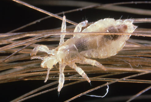 photolibrary rm photo of louse on human hair Thinning Hair Tips That Can Actually Work