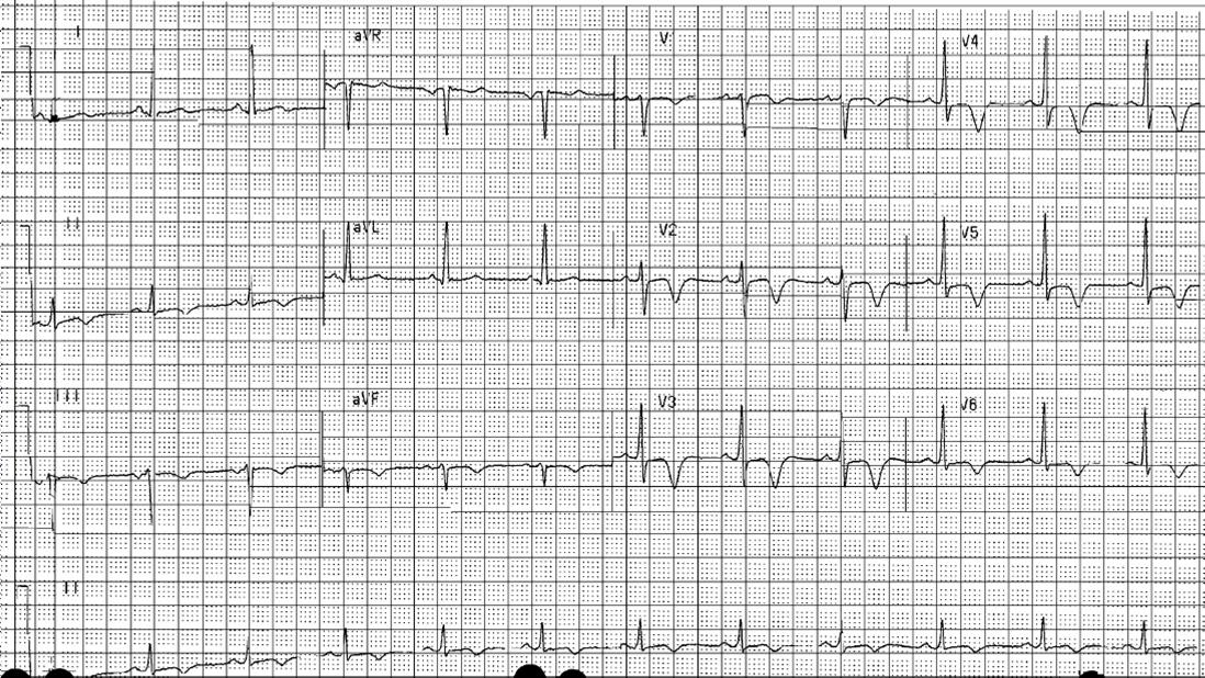 Cardiac Catheterization, Heart Cath,.