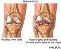 Nursing Intervention for Osteoarthritis