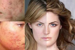 Cara menghilangkan noda hitam di wajah