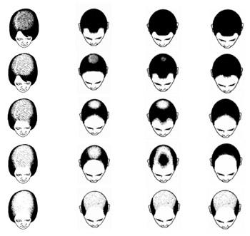 La máscara para los cabellos sea of spa de barro la máscara las revocaciones