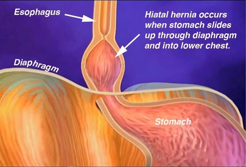 Can hiatal hernia make sex painful
