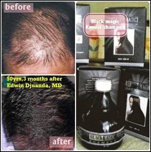 Black Magic Kemiri Shampoo Atasi Masalah Rambut Rontok, Kusam, Patah-Patah