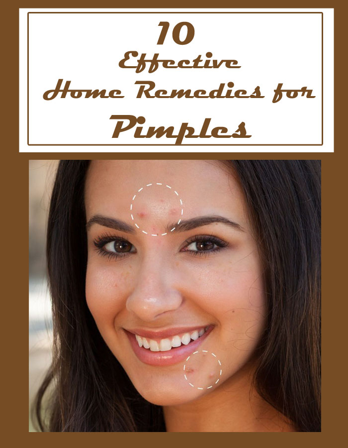 10 Effective Home Remedies for Pimples