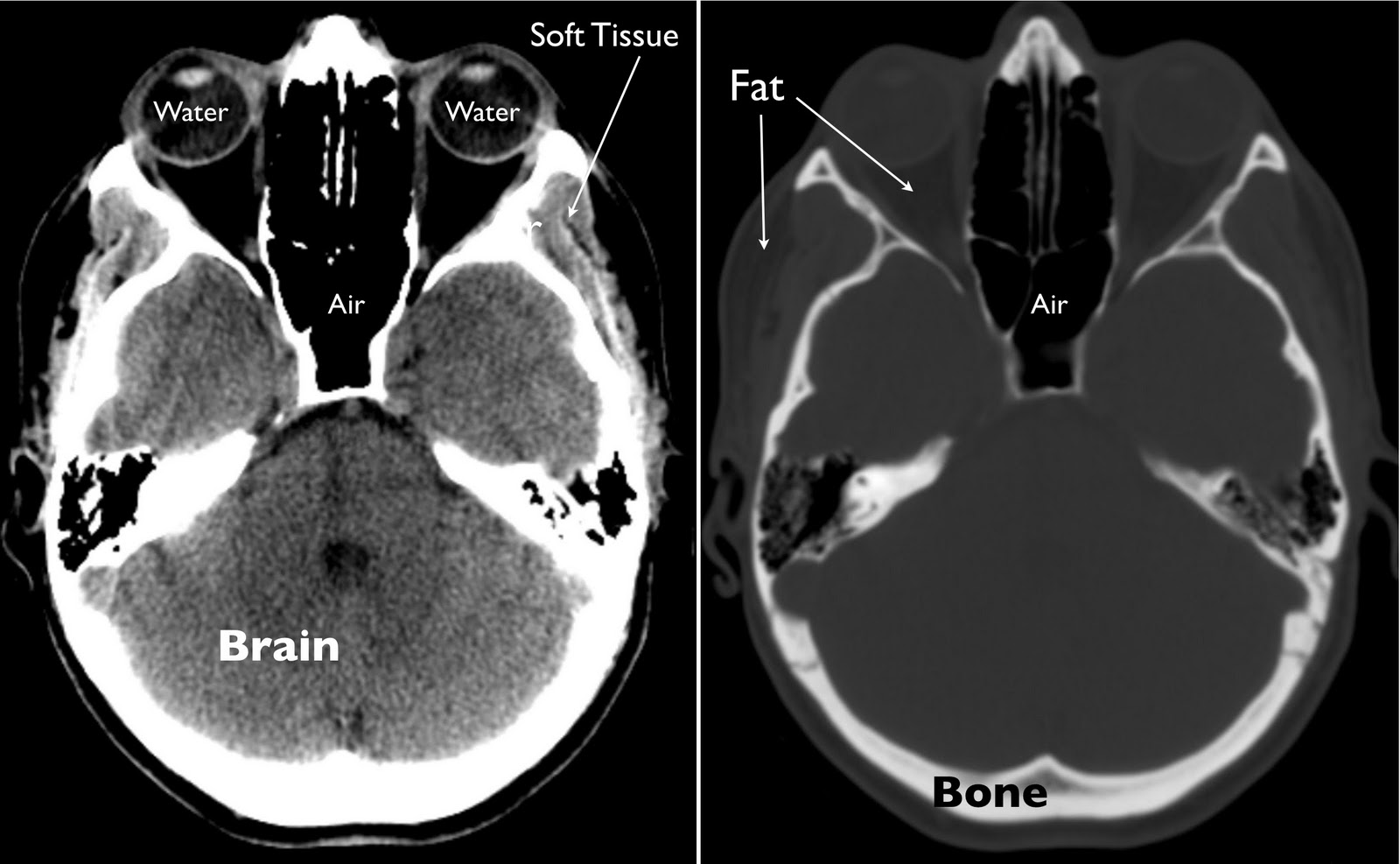ABOVE RIGHT: A single slice from a normal head CT at brain window ...