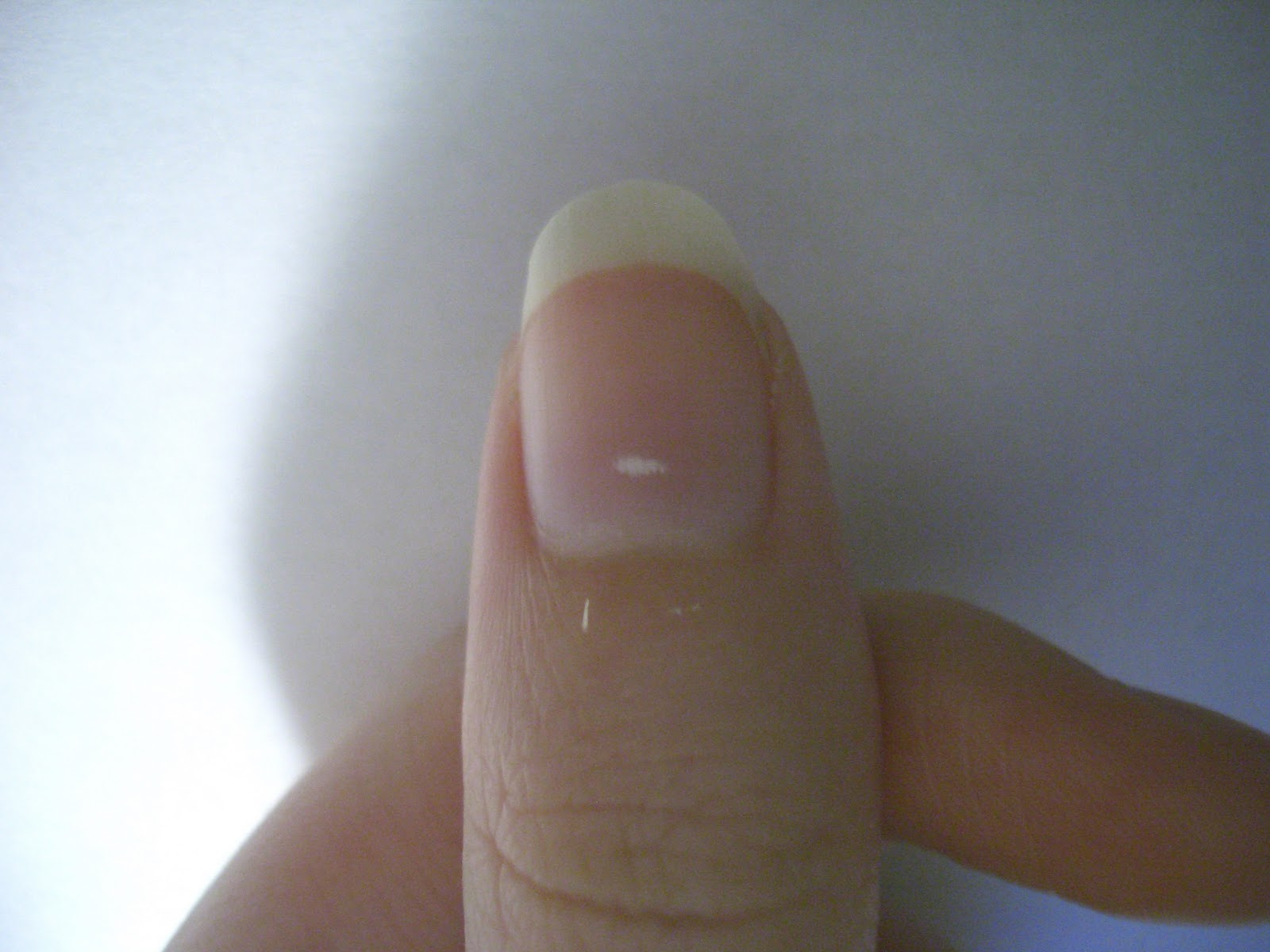 How to avoid white spot on the nail