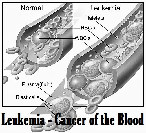 leukemia cancer of the blood essay Leukemia is a blood cancer characterized by the formation of abnormally high numbers of white blood cells it may also transform the normal blood cells into abnormal white blood cells, and the uncontrolled growth in the number of white blood cells overwhelms and replaces normal bone marrow and blood cells.